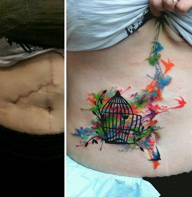 Tatuagens feitas para esconder cicatrizes #4